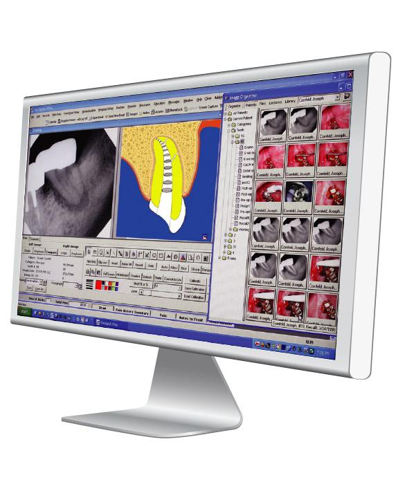tdo-endodontics-software