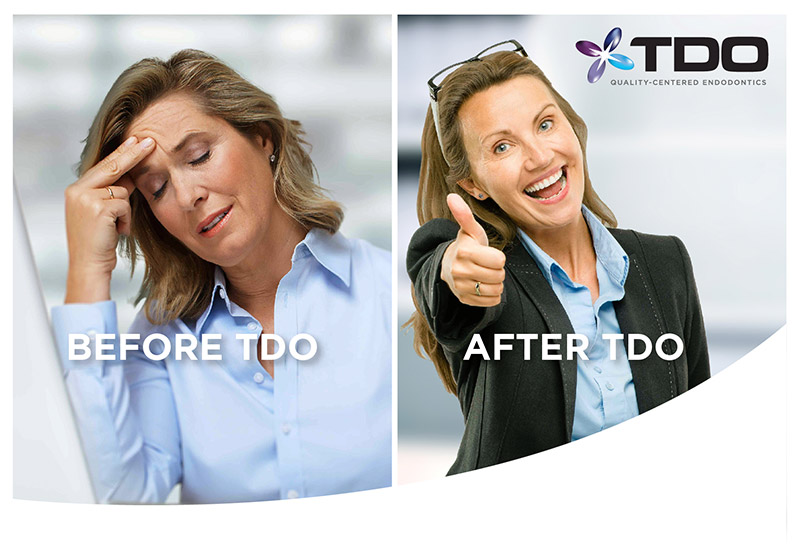 before-after-tdo